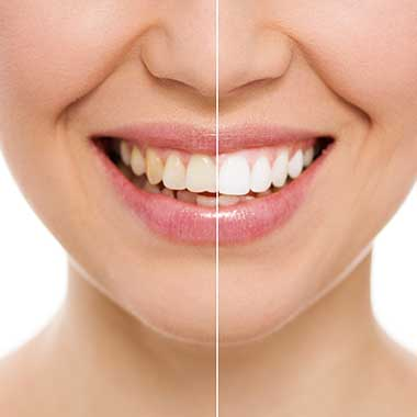 Manchester Teeth Whitening